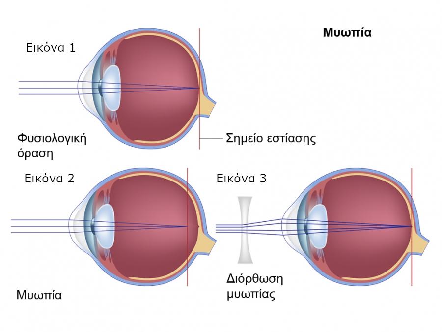 muopia